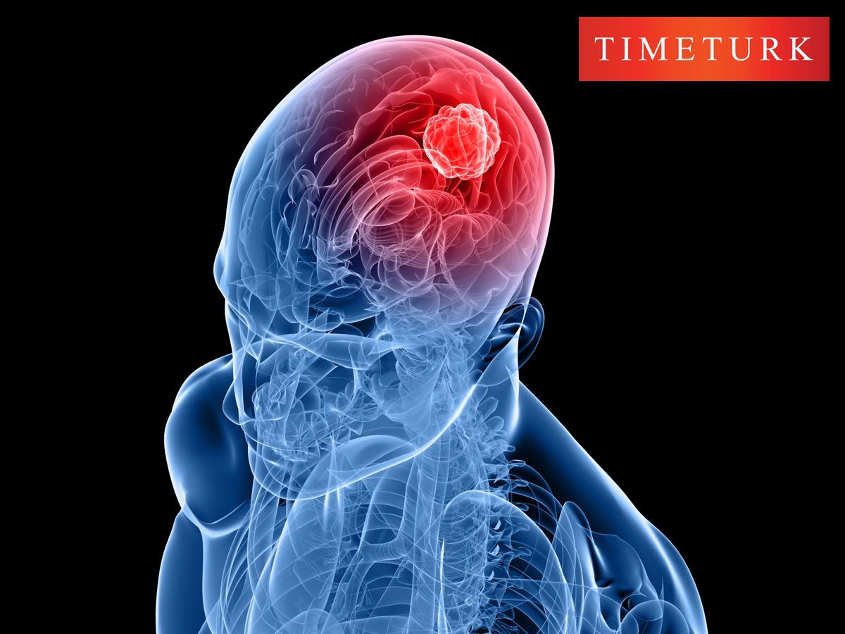 ali-erdem-yildirim-2-her-bes-kisiden-birinde-hipofiz-tumoru-riski-var